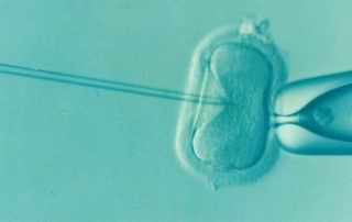 The Cost of IVF in San Diego